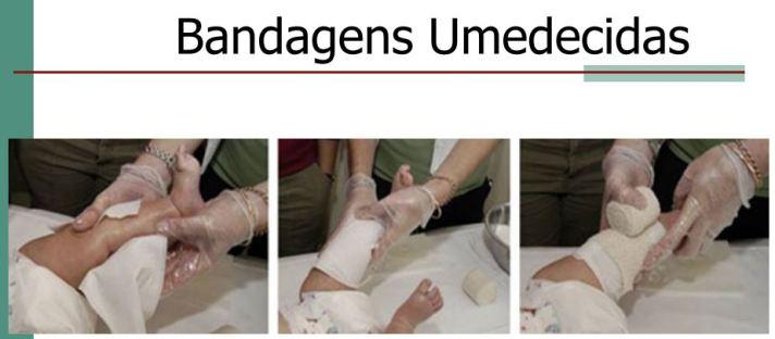 Aplicação da atadura ou bandagem já umedecida