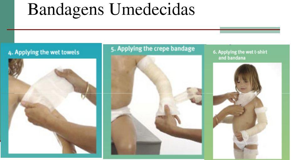 Aplicação da bandagem já umedecida sobre a pele com creme