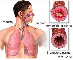 Brônquio durante crise de espasmo - ASMA